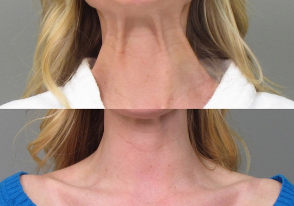 Neck Before After