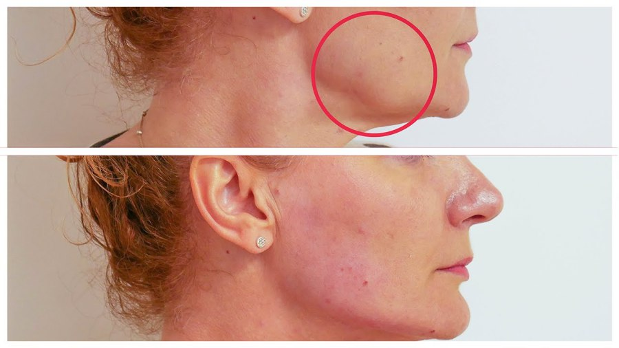 ... Dermal Filler To Define The Jawline And Make It More Demarcated Hiding  The Sagging Effect Of Facial Ageing, We Use The Latest Cutting Edge  Techniques To ...